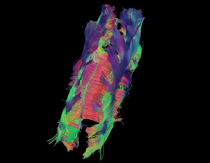 Corpus Callosum Color